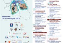 Benevento| Dal 13 al 15 giugno a Benevento si terrà il 2°Congresso regionale della Società Italiana di Pneumologia SIP-IRS