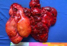 Moscati, asportato liposarcoma di 4 chili: eccezionale intervento chirurgico in collaborazione con il Monaldi